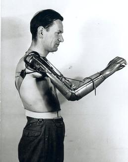 prostheticarm1950s