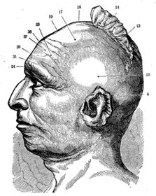 BlackHawkPhrenology