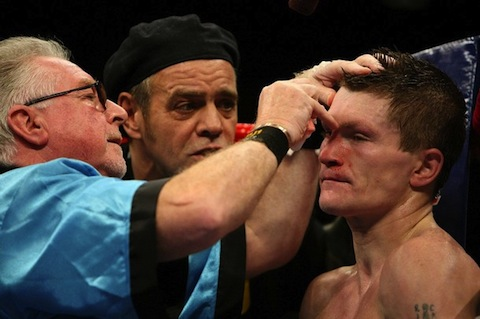 Boxing+cutman